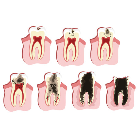 Caries progress illustration: 7 stages