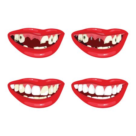 Dental restoration. Beautiful smile after dental treatment
