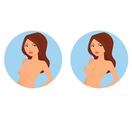 Before and after lifting the breasts of women. Vector illustration. Illustration