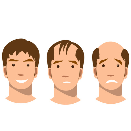 Stages of baldness. 矢量图像