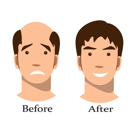 Men thinning hair treatment before and after Stok Fotoğraf