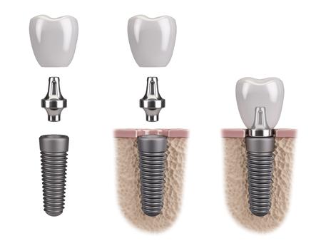 dental surgery: Tooth human implant Stock Photo