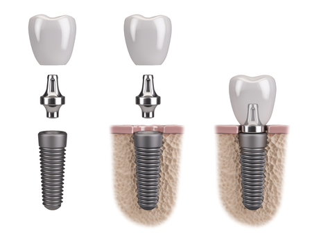 Tooth implant humain Banque d'images - 64527092