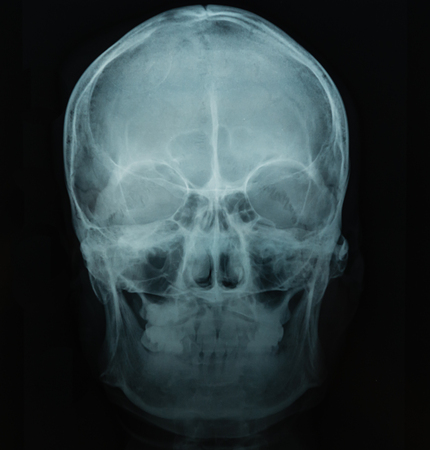 Fichier X Ray du crâne humain en fond noir, utile pour les antécédents médicaux, examen médical, technologie des soins de santé, médicaments, hôpital, médecin, concepts de patients