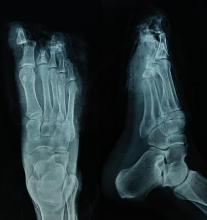 X Ray fichier de pied humain en fond noir, utile pour un antécédents médicaux, examen médical, technologie de soins de santé, médicaments, hôpital, médecin, concepts de patients