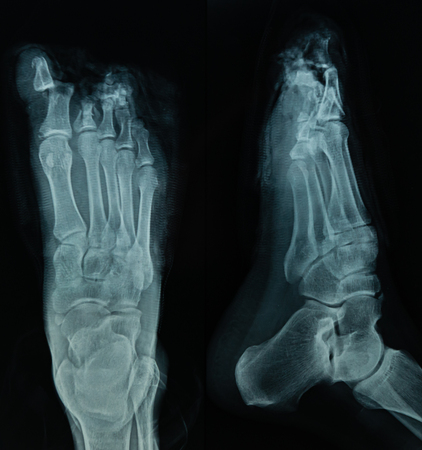 X Ray file of human foot in black background, useful for medical background, medical examination, health care technology, medication, hospital, doctor, patient concepts