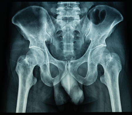 X Ray file of human palvis in black background, useful for medical background, medical examination, health care technology, medication, hospital, doctor, patient concepts