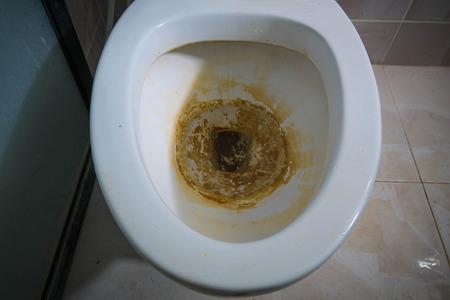 inodoro: Primer plano Tocador sucio en el baño