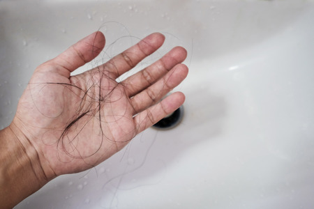 Close-up a man hand with loss hair, after taking shower, concepts of loosing hair Stockfoto