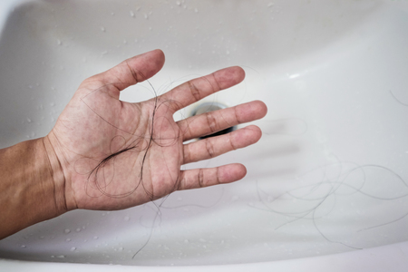 loosing: Close-up a man hand with loss hair, after taking shower, concepts of loosing hair Stock Photo