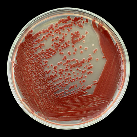 Red bacterial colonies on a petri plate dish isolated on a black background. Oil-degrading bacteria used. Nutrient agar media used. Focus on full depth. Big bacterial colonies mainly seems not to be with a sharp border because of this strain colonies has  Stock Photo