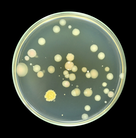 microbial: Colonies of bacteria from sea water on a petri dish agar plate isolated on black background. Different color, size and type of colonies. Different microbial species. Nutrient agar media meat-peptone agar used. Focus on full depth. Stock Photo