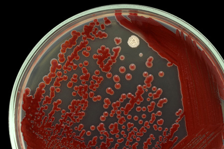 Las colonias de bacterias en una macro superficie de agar foto. Nutrientes medios de agar contiene pequeños granos de luz. Centrarse en toda la superficie de agar. Aislado en un fondo negro. Foto de archivo - 51356161