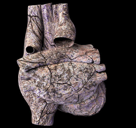 Model of ruined human heart Stock Photo - 13720533