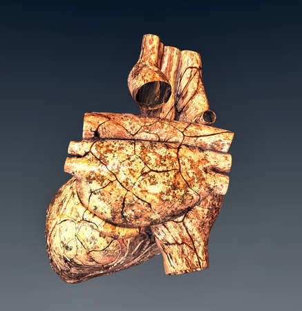 Model of ruined human heart photo