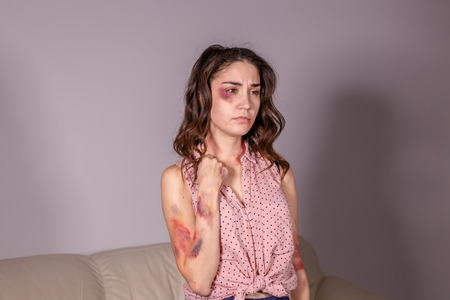 violence issues - Woman victim of domestic violence and abuse over grey background