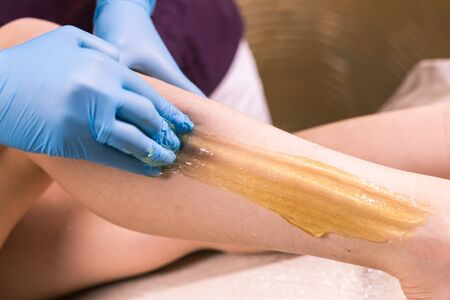 Sugaring epilation skin care with liquid sugar at legs close-up. You can see her smooth and hair free legs after hair removal. Beauty and cosmetology concept.