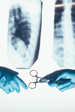 bioclean: Two surgeons working and passing surgical equipment in the operating room hospital healthcare  against the background of the spine X-rays Stock Photo