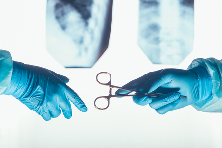 by pass surgery: Two surgeons working and passing surgical equipment in the operating room hospital healthcare  against the background of the spine X-rays Stock Photo