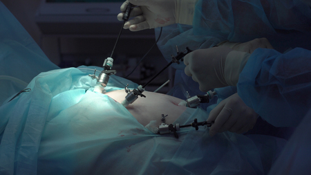 Operation using laparoscopic equipment. Surgeons team working with of patient in surgical operating room. Hospital.