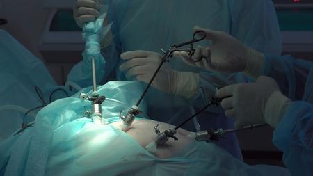 Operation using laparoscopic equipment. Surgeons team. Hospital.