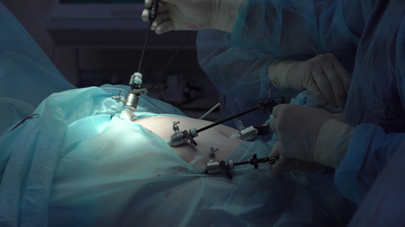 Operation using laparoscopic equipment. Surgeons team. Hospital.