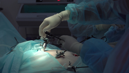 Operation using laparoscopic equipment. Surgeons team. Hospital. Stock Photo - 91251824