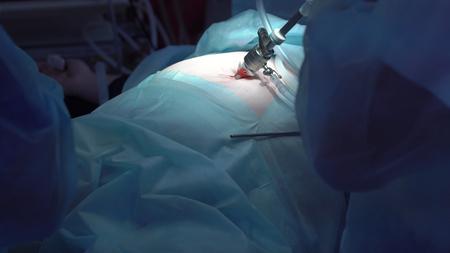 Operation using laparoscopic equipment. Surgeons team. Hospital. Stock Photo - 91810240