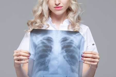 Young female doctor looking at the x-ray picture of lungs Stock Photo