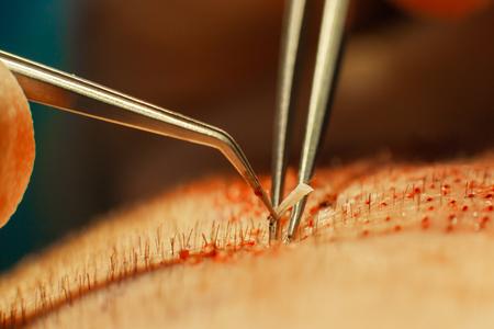 Makrofotografie einer in einen haarlosen Bereich transplantierten Haarzwiebel. Behandlung von Kahlheit. Haartransplantation. Chirurgen im Operationssaal führen Haartransplantationen durch. Operationstechnik, bei der Haarfollikel von einem Teil des Kopfes entfernt werden.