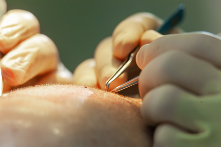Macrophotography of a hair bulb transplanted into a hairless area. Baldness treatment. Hair transplant. Surgeons in the operating room carry out hair transplant surgery. Surgical technique that moves hair follicles from a part of the head.