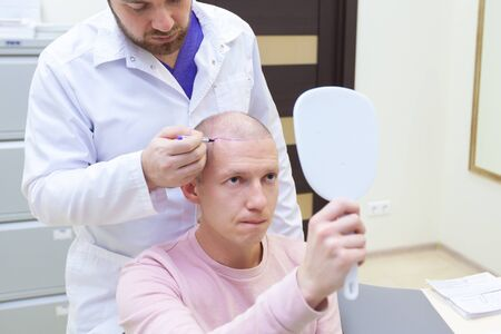 Baldness treatment. Patient suffering from hair loss in consultation with a doctor. Preparation for hair transplant surgery. The line marking the growth of hair. The patient controls the marking in the mirror