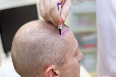 Baldness treatment. Patient suffering from hair loss in consultation with a doctor. Preparation for hair transplant surgery. The line marking the growth of hair. The patient controls the marking in the mirror. Head close-up.