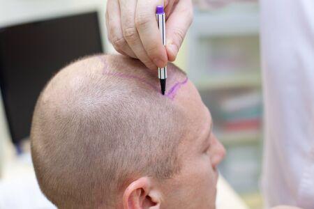 Trattamento della calvizie. Paziente che soffre di perdita di capelli in consultazione con un medico. Preparazione per la chirurgia del trapianto di capelli. La linea che segna la crescita dei capelli. Il paziente controlla la marcatura nello specchio. Primo piano della testa.