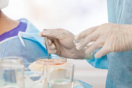 Behandlung von Kahlheit. Haartransplantation. Chirurgen im Operationssaal führen Haartransplantationen durch. Operationstechnik, bei der Haarfollikel von einem Teil des Kopfes entfernt werden. Standard-Bild