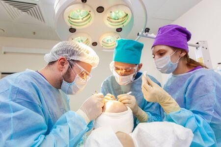 Behandlung von Kahlheit. Haartransplantation. Chirurgen im Operationssaal führen Haartransplantationen durch. Operationstechnik, bei der Haarfollikel von einem Teil des Kopfes entfernt werden.