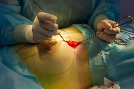 Hospital. Surgeon operates in the operating room. Close-up of an incision for breast augmentation operation