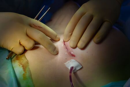 Hospital. Surgeon operates in the operating room. Close up of the surgeons hands examining the suture on the patients breast after plastic surgery