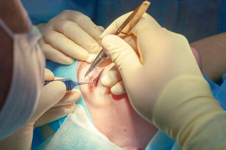 Close up of the face of a patient who is undergoing blepharoplasty. The surgeon cuts the eyelid and performs manipulations using medical instruments. Standard-Bild