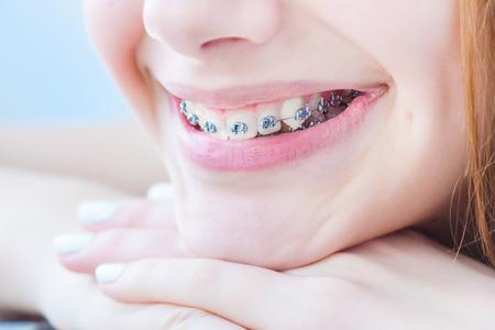 ortodoncia: Los dientes con brackets.