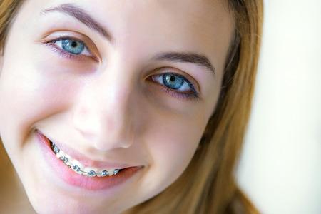 Tanden met bretels.