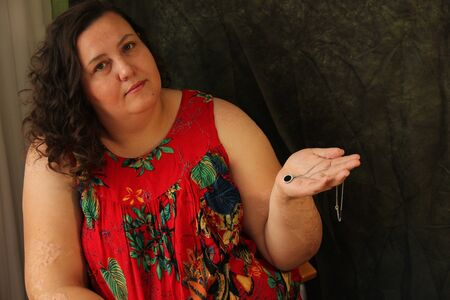 Overweight woman holding jewelry in her hands. On her hands are scars from burns. Plus size model Zdjęcie Seryjne