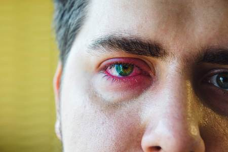 Close up right upper eyelid abscess of man Stock Photo