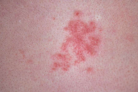Human skin with red allergic spots, sores