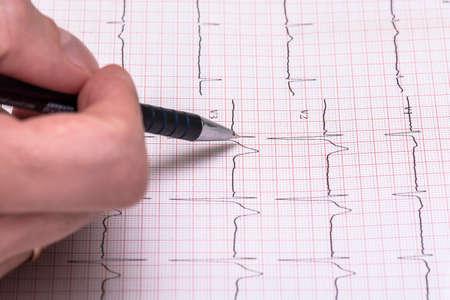 ECG paper graph report, electrocardiogram on paper form as background Reklamní fotografie