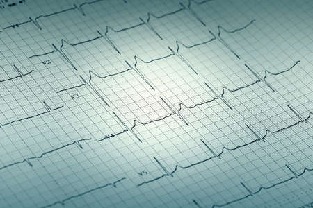 ECG paper graph report, electrocardiogram on paper form as background