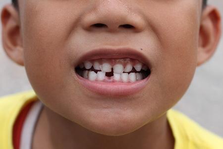 Groß Zähne Verdrahtet Geschlossen Kayne Fotos - Elektrische ...