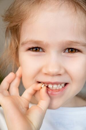 close up girl with the fallen milk tooth in his hand. dental care. tooth fairy. the children hospital.