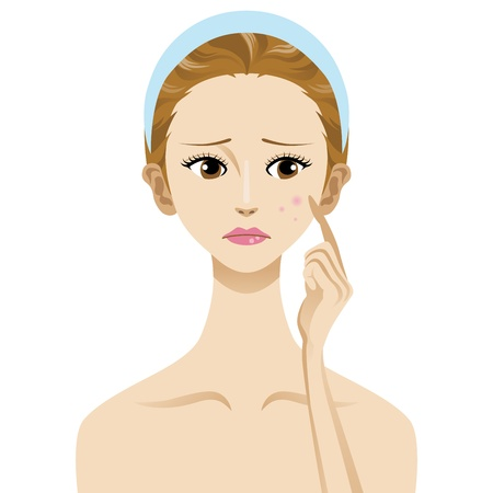 Acne,Skin Trouble