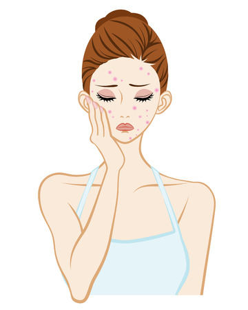 in trouble: Acne-Skin care Trouble